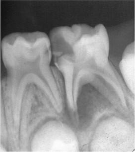 2. L'elemento 7.5 presenta una lesione periapicale cronica estesa con verosimile compromissione della vitalità pulpare. I tessuti duri del dente sono ancora molto ben rappresentati e sono giudicati adeguati per il restauro. Non si apprezzano riassorbimenti radicolari che possano controindicare il mantenimento dell'elemento. La lesione cronica non ha ancora interessato la gemma del permanente che appare ancora avvolta da suo cappuccio osseo. Non esiste indicazione all'estrazione di questo elemento che invece dovrà essere trattato con pulpectomia e otturazione canalare.
