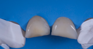 traumi dentali epidemiologia direct-restoration-frontal-teeth