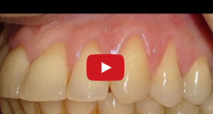 gingival-recession-treatment-connective-tissue-graft recessione gengivale mucogengivale