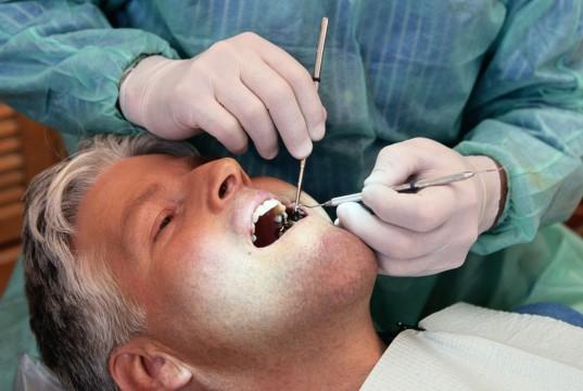 rigenerativa difetti parodontali dentista chirurgia rigenerativa perimplantite seno mascellare innesti ossei impianti