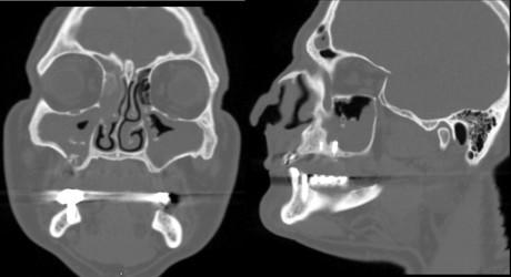 2. Sinusite etmoidomascellare bilaterale e frontale destra in esiti di rialzo di seno (SCDDT di classe 1a). Sinistra: ricostruzione TC coronale che mostra l'interessamento bilaterale delle cavità paranasali. Sono ben visibili i frammenti ossei (in questo caso osso di banca) dislocati all'interno del seno. Sul pavimento del seno mascellare di destra è ben visibile un'ampia comunicazione oro-antrale, sempre esito dell'innesto fallito. Destra: ricostruzione TC in sagittale passante per l'asse maggiore del seno mascellare di destra. Oltre a ulteriori frammenti di innesto, sono ben riconoscibili due fixture, una delle quali aggetta parzialmente nel seno a causa del fallimento dell'innesto.