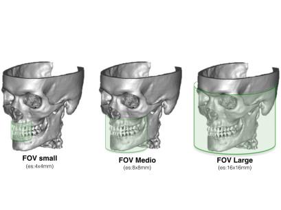 1. Rappresentazione grafica dell'area del cranio coperta dai FOV che sono più comunemente richiesti.