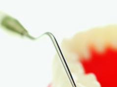 carie edentulia parziale fisiopatologia della carie