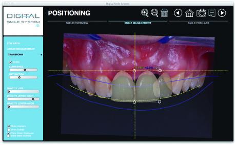 5. Un'immagine del Digital Smile System, un moderno e potente software per lo studio del piano di trattamento, la pre-visualizzazione dei risultati e la comunicazione con il paziente (per gentile concessione del Dr. Riccardo Stefani).