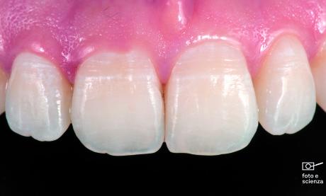 7. La complessità ottica dei denti è ben rappresentata in questi incisivi: bande chiare, aree a traslucenza differenziata, massima al margine incisale, micro- e macro-anatomia di superficie (perikymata od ondulazioni superficiali e lobi di sviluppo). Si noti come dall'immagine è anche evidenziabile l'anatomia gengivale, in particolare la superficie lucida della parte esterna solco gengivale, ben differenziabile dalla gengiva aderente con il tipico aspetto a buccia d'arancia.