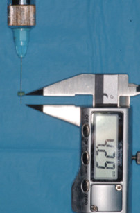 2. Strumenti utilizzati per la determinazione dello spessore del palato.