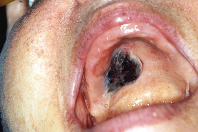 Melanoma nodulare primitivo della cavità orale