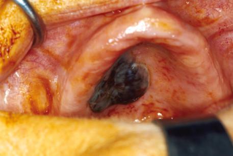 2. Risultato al termine dell'exeresi della lesione. Si noti la mucosa delle cavità nasali visibile grazie all'asportazione del piano osseo del palato duro.