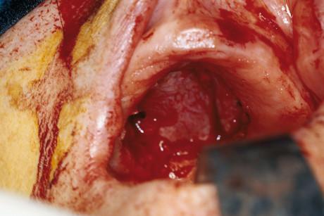 3. Controllo a tre mesi dall'intervento chirurgico. Si noti la guarigione quasi completa del difetto chirurgico (confrontare con figura 3) fatto salvo un piccolo difetto di sostanza dovuto al decubito della protesi superiore ad appoggio mucoso in via di risoluzione.