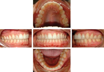 33. Paz. C.M., foto intra-orali di controllo dopo 5 anni.