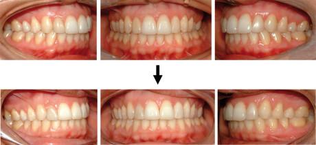 34. Paz. C.M., foto intra-orali finali e dopo 5 anni.
