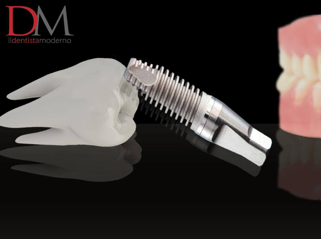 cad-cam carico immediato implantologia