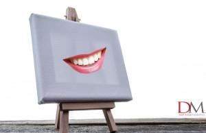 diastema faccette analisi dentale nuovo sorriso