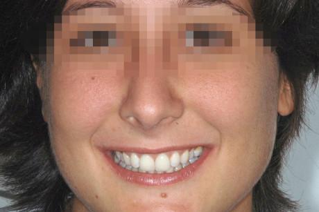 10. VIso con sorriso spontaneo della paziente.