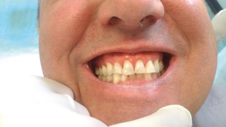 12. Controllo clinico: simmetria del volto.