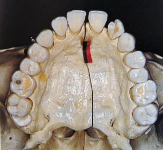2. Posizione del forame naso-palatino su cranio secco e decorso del fascio neuro-vascolare naso-palatino (da Chiapasco M, Manuale Illustrato di Chirurgia Orale, seconda edizione, Milano: Elsevier, 2006).