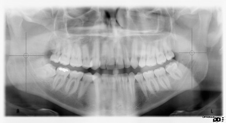 1. Ortopantomografia di soggetto adulto: si evidenzia bilateralmente la localizzazione della Spina di Spix.