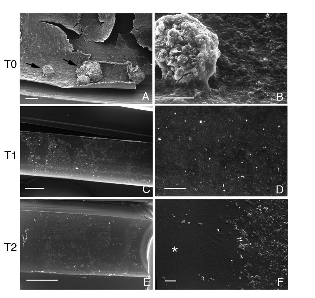 """1. Esame al SEM delle superfici interne dei condotti. A) e B) Campionamento eseguito al tempo T0. I campioni risultano completamente rivestiti da uno spesso strato di biofilm che risulta frammentato e poco aderente alla superficie; sono visibili anche voluminosi aggregati di biofilm di diametro >50 micron (frecce nere), mostrati in maggior dettaglio nella figura B; Bar: A) = 100 micron; B) = 50 micron. C) e D) Campionamento eseguito al tempo T1. Dopo due mesi di trattamento con il sistema Osmosteril Attila® si apprezza una significativa riduzione della presenza e dello spessore del biofilm che appare estremamente sottile ed evidente solo nelle osservazioni eseguite a maggiore risoluzione. Bar: C) = 500 micron; D) = 50 micron. E) e F) Campionamento eseguito al tempo T2. La riduzione della concentrazione del biossido di cloro non determina variazioni significative dello spessore e della morfologia del biofilm; a maggiore ingrandimento viene illustrata una zona di transizione tra superficie """"bonificata"""", libera da biofilm (asterisco) e superficie con residui di biofilm, costituito da batteri liberi (frecce bianche) e batteri associati a matrice organica (teste di freccia). Bar: E) = 500 micron; F) = 10 micron."""