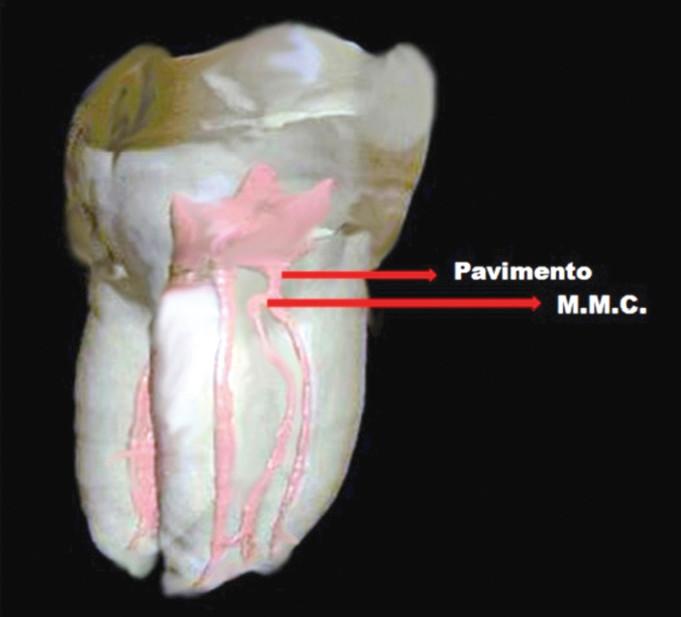 Reperimento del canale mesiale mediano nei primi molari for Canale camera dei deputati