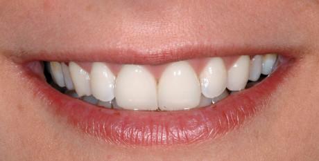 9. Dettaglio del sorriso della paziente.