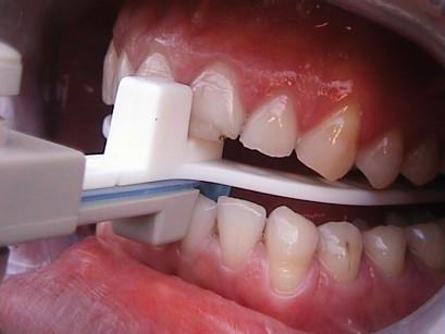 16. Inserimento in bocca del George Gauge per la verifica della posizione di protrusione mandibolare.