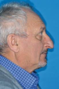 18. Fotografia di profilo: si nota la biretrusione.