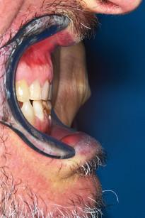 19. Posizionamento di protrusione mandibolare stabilita per il morso di costruzione.
