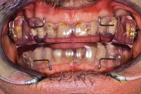 20. Fotografia orale di fronte con l'apparecchio Somnodent.