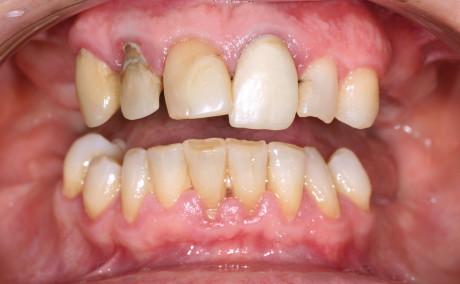 5. Situazione iniziale. Si è proceduto all'estrazione dei denti compromessi, previa apertura di un lembo, in modo da avere accesso alla cresta alveolare,  ed è stata successivamente eseguita una regolarizzazione della cresta ossea,  al fine di evitare un gummy smile al termine della riabilitazione.