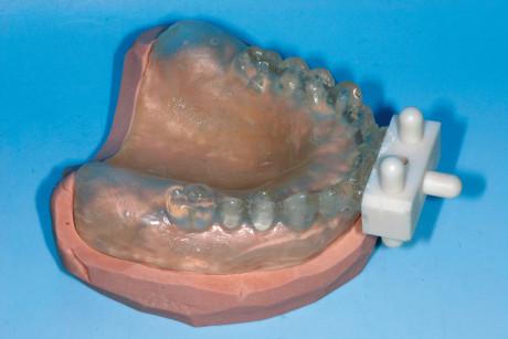 7. Per creare la dima radiologica si procede con la duplicazione di precisione della protesi provvisoria utilizzando un sistema a stampo.