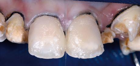 9. Applicazione di Esthet-X HD (A1). Build-up della dentina e dei mamelloni.