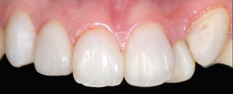 14. Il controllo a sei mesi ha mostrato una buona forma e l'integrazione del colore, con un responso sano del tessuto molle.