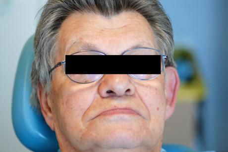 1. Aspetto iniziale del paziente con le vecchie protesi.