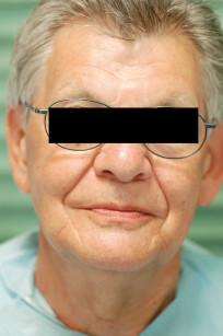 8. Visione frontale del paziente. Si noti il corretto sostegno dei tessuti molli periorali grazie a una dimensione verticale più corretta.