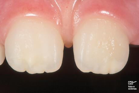 2. Si noti la differente traslucenza dei margini di questi elementi appena erotti: gli incisivi inferiori ne mostrano un notevole grado a differenza dei superiori. Nei denti giovani si apprezza ancora la presenza dei mammelloni incisali relativi ai lobi di sviluppo e delle ondulazioni superficiali, caratteristiche estrinseche verticali e orizzontali dell'anatomia ottica del dente.