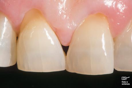 4. Un'immagine che mostra l'anatomia ottica di due incisivi centrali, in particolare la presenza delle crepe dello smalto, evidenziate grazie a una tecnica d'illuminazione che ho sviluppato recentemente.
