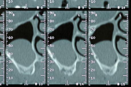 2. Tomografia computerizzata pre-operatoria: si evidenzia la presenza di un'ampia lesione radio-opaca di presunta natura cistica localizzata nel pavimento del seno mascellare destro e occupante più di un terzo del volume sinusale.