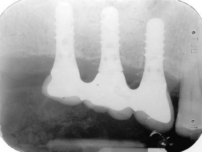 11. Controllo radiografico a 1 anno.