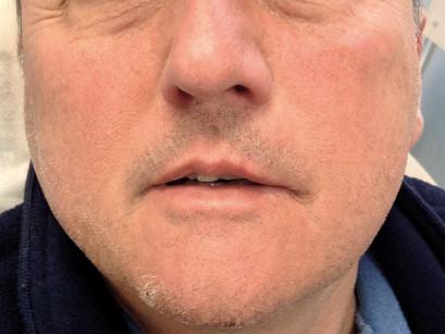 1. Tumefazione evidente guancia sx.