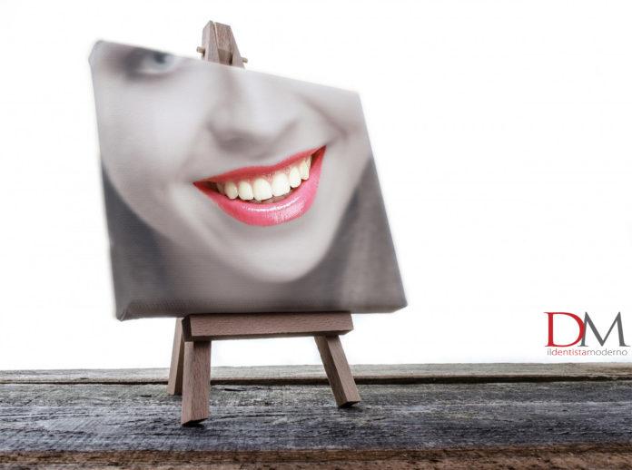 sorriso paziente faccette dentali_odontoiatria estetica