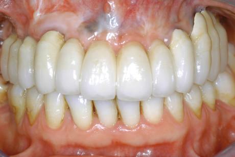 21. Visione frontale della protesi in oro-ceramica posizionata.
