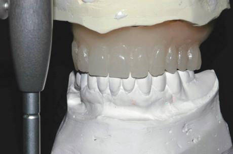 1. È stata realizzata una ceratura in laboratorio dall'impronta della protesi del paziente e montata in articolatore.