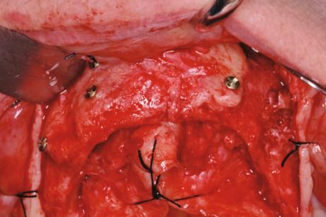 2. Lo scollamento dei lembi mostra il risultato di un precedente innesto osseo prima della rimozione delle viti di ritenzione. L'innesto osseo era stato molto più efficace nel mascellare anteriore che in quello posteriore.