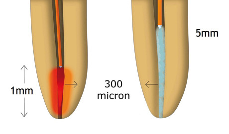 4. Differenti applicazioni di punte endodontiche tradizionali per laser a erbio e nuove punte PIPS.