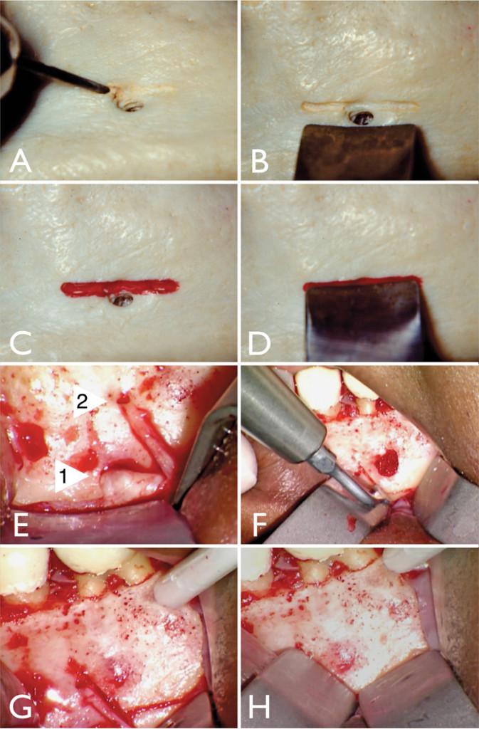 1. Applicazione di una scanalatura protettiva. Modello anatomico di studio: A. forame mentoniero, B. area marcata per la scanalatura, C. scanalatura posta sopra al forame mandibolare (nella mandibola sopra al forma), D. retrattore fissato in posizione che protegge il fascio di nervi. Esempio clinico: E. forame mentoniero (freccia 1), forame accessorio (freccia 2), F. esecuzione della scanalatura con piezotome, G. scanalature orizzontali e verticali, H. retrattore in posizione che protegge il fascio di nervi principale e accessorio.