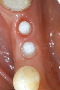 7. Guarigione a 8 mesi: visione intra-orale occlusale.