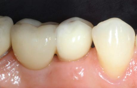9. Protesizzazione definitiva con corone in zirconio ceramica.