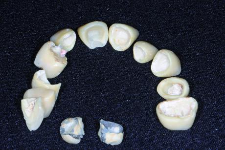 """3. Corone e ponte in ceramica su zirconia rimosse. L'utilizzo di materiali """"nuovi"""" in questo caso si è rivelato un fallimento catastrofico."""
