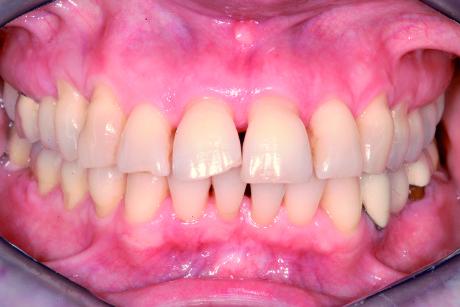 8. Paziente adulta affetta da parodontite cronica grave estesa a tutti gli elementi delle due arcate. In particolar modo sono presenti lesioni di grado 3 a carico delle forcazioni di tutti i molari. Situazione clinica iniziale.