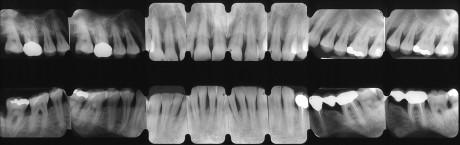 9. Esame radiografico iniziale.